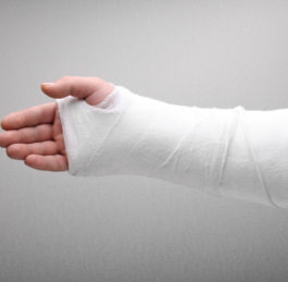 Treatment for Bone Fractures