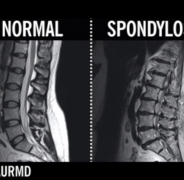 What is Spondylosis?